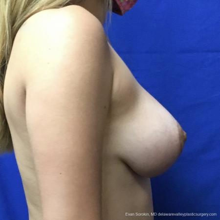 Breast Lift And Augmentation: Patient 40 - After Image 3