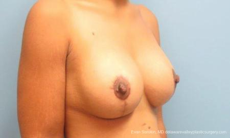 Philadelphia Breast Lift and Augmentation 9343 -  After Image 2