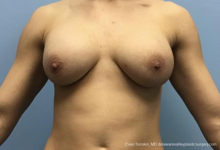 Breast Lift And Augmentation: Patient 42 - Before Image 1