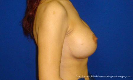 Philadelphia Breast Augmentation 9294 -  After Image 5