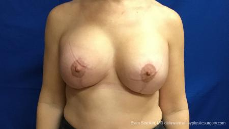 Philadelphia Breast Lift and Augmentation 13179 -  After Image 1