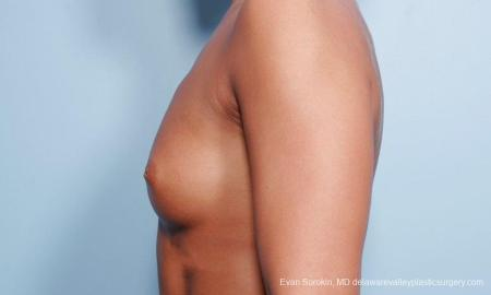 Philadelphia Breast Augmentation 9299 - Before and After Image 3