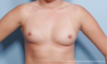 Philadelphia Breast Augmentation 9301 - Before Image 1