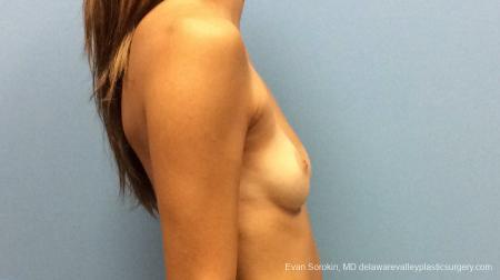 Philadelphia Breast Augmentation 13180 - Before Image 3