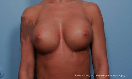 Philadelphia Breast Augmentation 9299 -  After Image 1