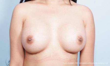 Philadelphia Breast Augmentation 9298 -  After Image 1