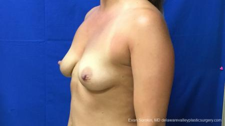 Philadelphia Breast Augmentation 13173 - Before Image 4