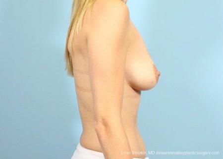 Philadelphia Breast Augmentation 9105 - Before 3