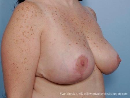Philadelphia Breast Reduction 8703 -  After Image 2