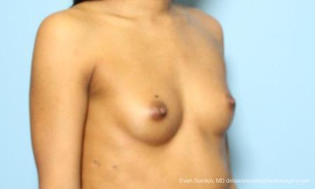 Philadelphia Breast Augmentation 9182 - Before Image 2