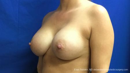 Philadelphia Breast Augmentation 13173 -  After Image 4