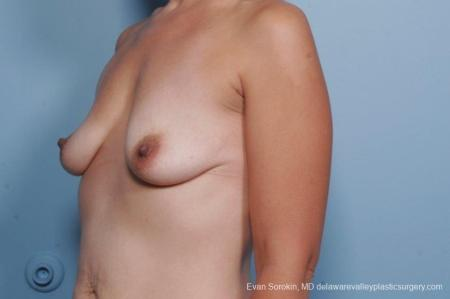 Philadelphia Breast Lift and Augmentation 8685 - Before Image 3
