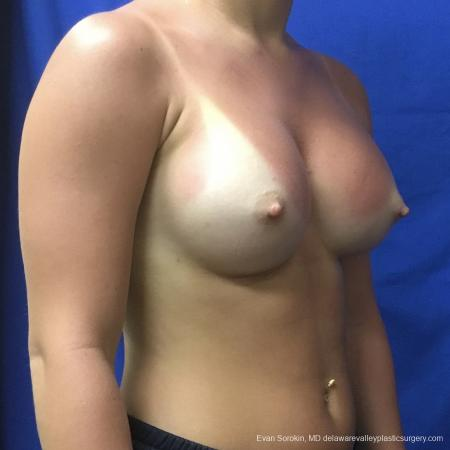 Breast Augmentation: Patient 165 - After Image 2