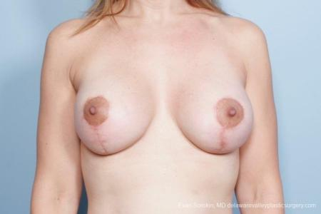 Philadelphia Breast Lift and Augmentation 8685 -  After Image 1
