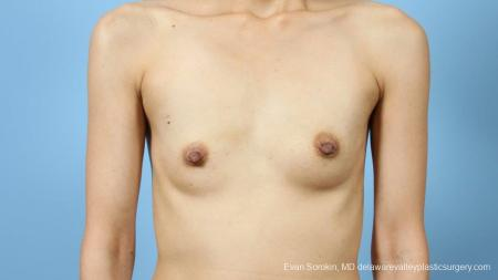 Philadelphia Breast Augmentation 9291 - Before Image 1