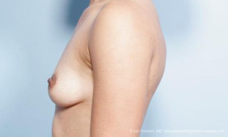 Philadelphia Breast Augmentation 9305 - Before and After Image 5