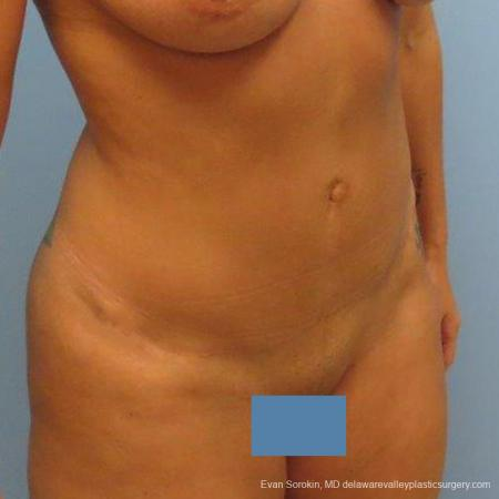 Philadelphia Abdominoplasty 9475 -  After Image 2
