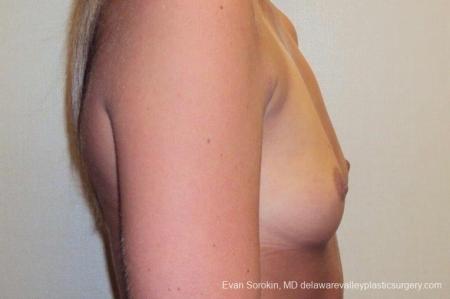 Philadelphia Breast Augmentation 8772 - Before Image 4