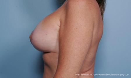 Philadelphia Breast Lift and Augmentation 9438 -  After Image 5