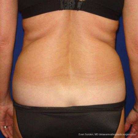 Philadelphia Liposuction 9488 - Before and After Image 5