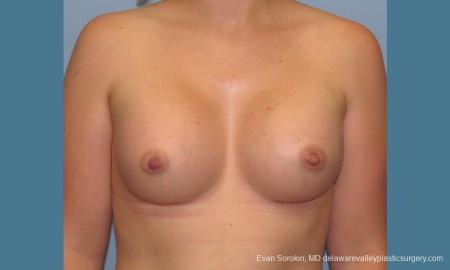 Philadelphia Breast Augmentation 10193 -  After Image 1