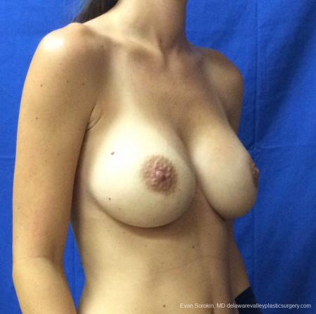 Philadelphia Breast Augmentation 13067 -  After Image 2
