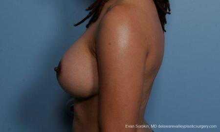 Philadelphia Breast Augmentation 9305 -  After Image 5