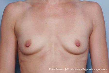 Philadelphia Breast Augmentation 8767 - Before Image 1