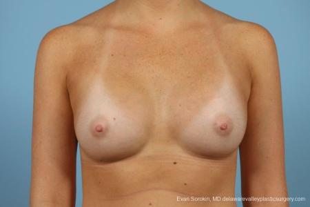 Philadelphia Breast Augmentation 8669 -  After Image 1