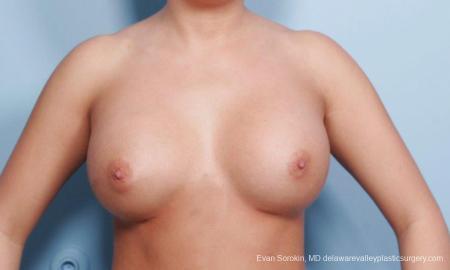 Philadelphia Breast Augmentation 9394 - Before Image 1