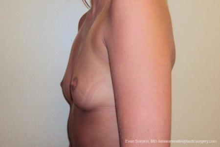 Philadelphia Breast Augmentation 8772 - Before and After Image 5