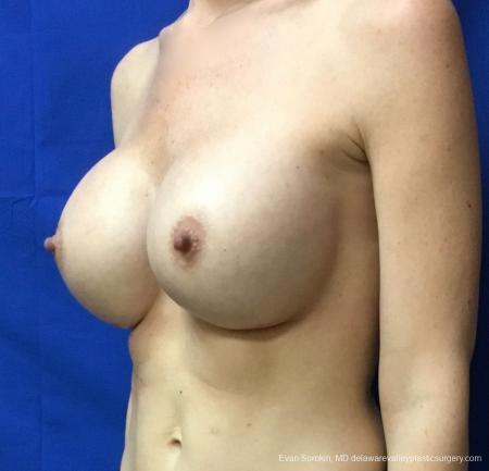 Philadelphia Breast Augmentation 13069 -  After Image 4
