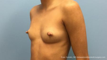 Philadelphia Breast Augmentation 13176 - Before Image 4