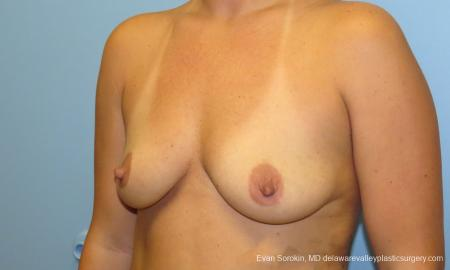 Philadelphia Breast Augmentation 9388 - Before Image 4
