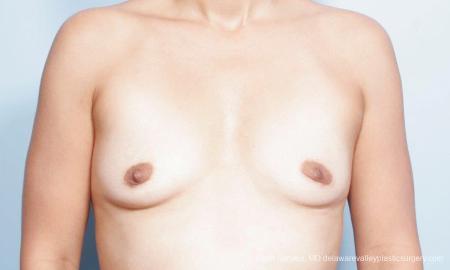 Philadelphia Breast Augmentation 9347 - Before Image 1