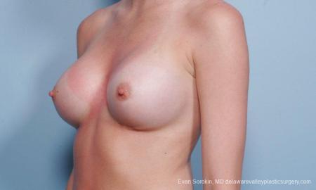 Philadelphia Breast Augmentation 8660 -  After Image 3