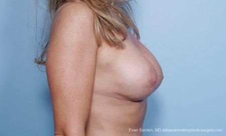 Philadelphia Breast Lift and Augmentation 9453 -  After Image 2