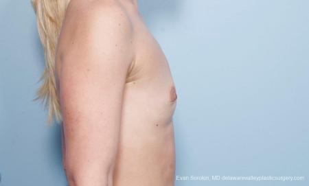 Philadelphia Breast Augmentation 8651 - Before Image 4