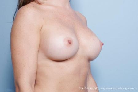 Philadelphia Breast Augmentation 8785 -  After Image 2