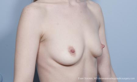 Philadelphia Breast Augmentation 8781 - Before Image 2