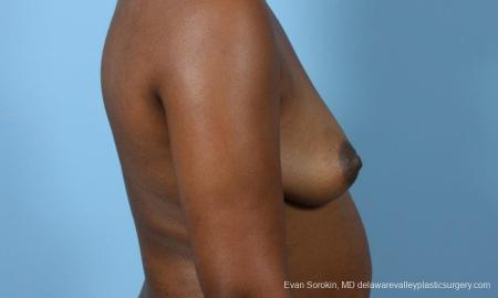 Philadelphia Breast Augmentation 9173 - Before Image 3