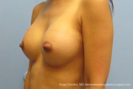 Philadelphia Breast Augmentation 8661 -  After Image 3