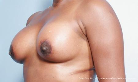 Philadelphia Breast Lift and Augmentation 9427 -  After Image 4