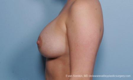 Philadelphia Breast Augmentation 9414 -  After Image 5