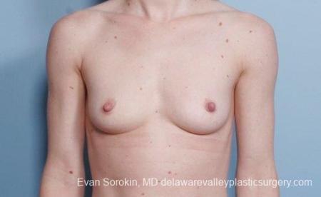 Philadelphia Breast Augmentation 9107 - Before Image 1