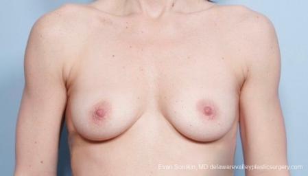 Philadelphia Breast Augmentation 8783 - Before Image 1