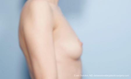 Philadelphia Breast Augmentation 8663 - Before Image 4
