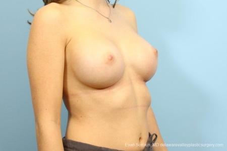 Philadelphia Breast Augmentation 8666 -  After Image 2