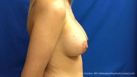 Philadelphia Breast Augmentation 12540 -  After Image 4