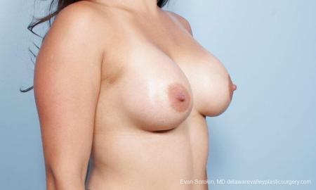 Philadelphia Breast Augmentation 9297 -  After Image 2